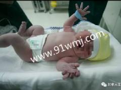 杭州加拿大生孩子客户H美女喜得宝宝